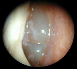 polypose nasosinusienne endoscopie