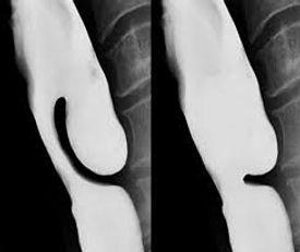 TOGD profil : avant et aprés traitement Zenker par voie endoscopique (marsupialisation)