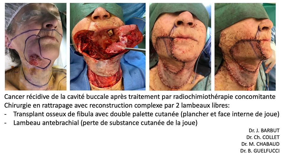 reconstruction comlexe par double lambeau libre (chinois et péroné) aprés exérèse en rattrapage (traitement préliminaire par radiochimiothérapie)d'un cancer récidivé de la cavité buccale
