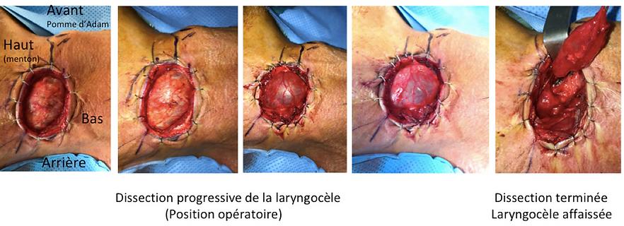 Chirurge laryngocèle par voie externe