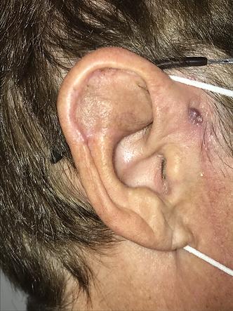 couverture 1/3 sup face latérale pavillon oreille - lambeau préauriculaire - résultat