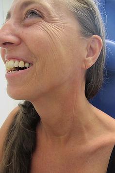 cicatrice cervicale aprés curage ganglionnaire complet conervateur