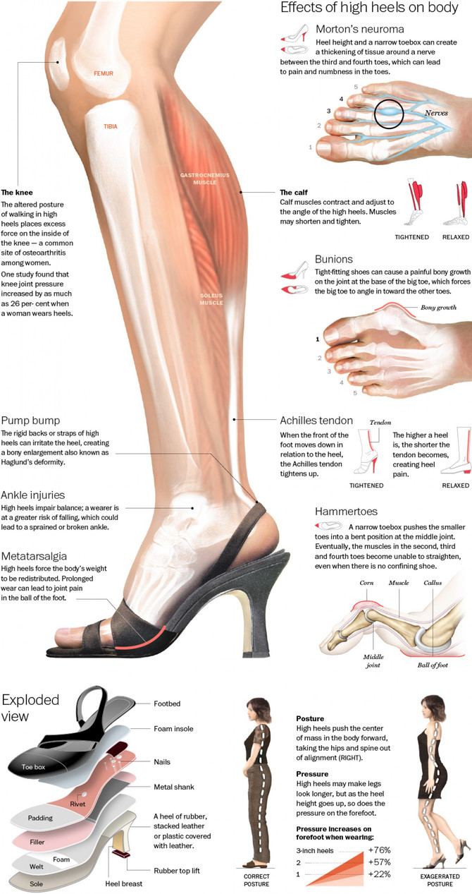 Fashion Injury: High Heels
