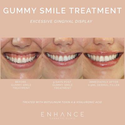gummy-smile-treatment.jpg