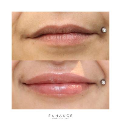 lip-flip-and-lip-filler-whangarei.jpg