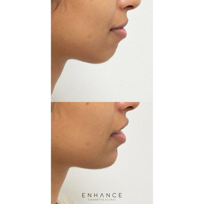 Chin projection example.jpg