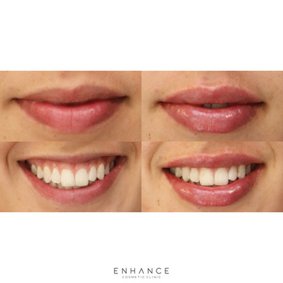 lip-flip-before-after