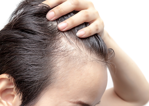 Platelet Rich Plasma as a Hair Loss Treatment.png