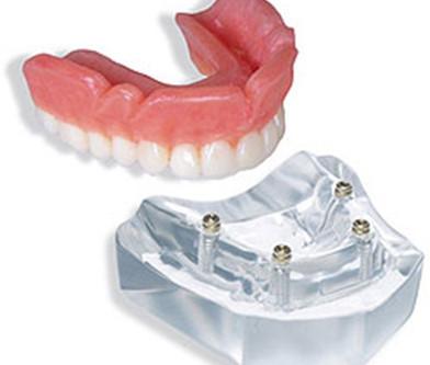 4 Implant Locator™ Abutment Upper Overdenture