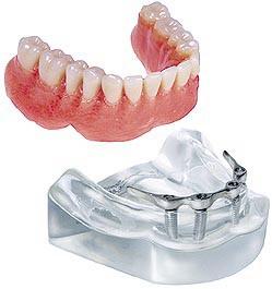 4 Implant Bar Lower Overdenture