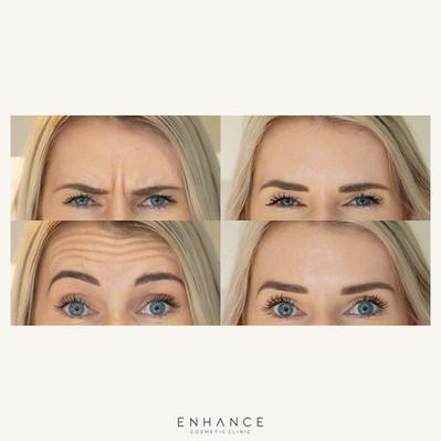 anti-wrinkle-enhance-cosmetic-clinic