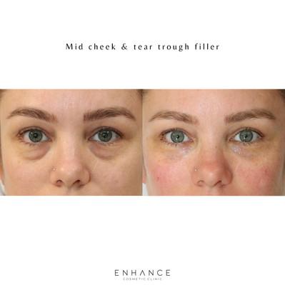 dermal-filler-facial-rejuvenation