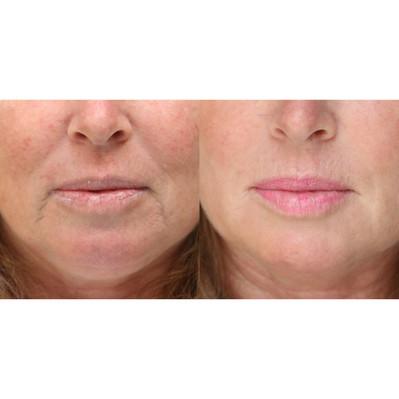 lip-filler-facial-rejuvenation
