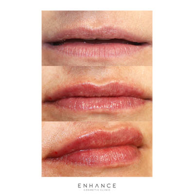lip-filler-before-after