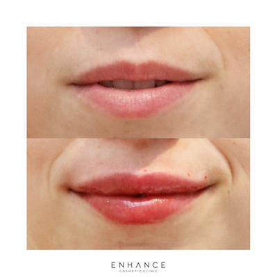 lip-flip-whangarei.jpg