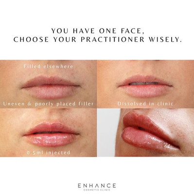 lip-dissolving-before-after