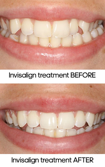 invisalign_treatment_whangarei_before_af