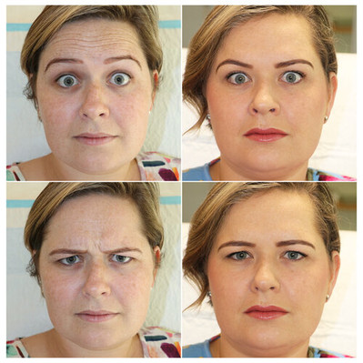 glabell-frontalis-muscles-enhance-cosmet