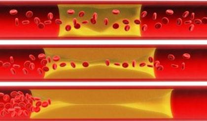 Hyperlipidemia1-300x176.jpg
