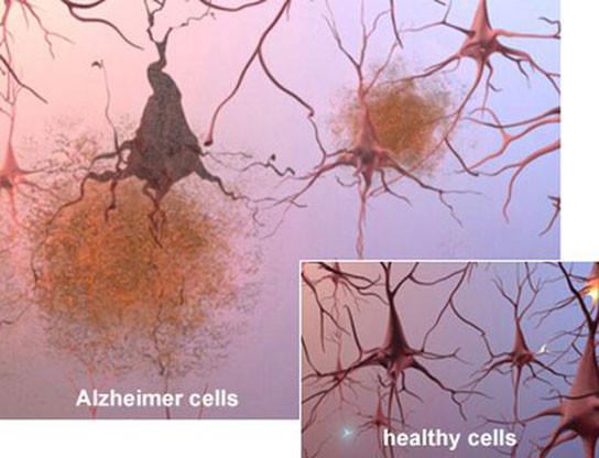 difference-between-healthy-alzheimer-cells.jpg
