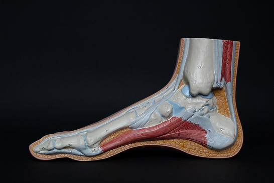ruptura de tendon ahilean.jpg