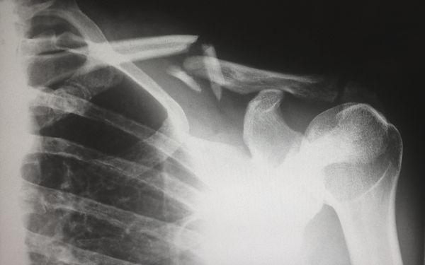 fractura de clavicula.jpg