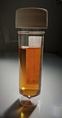 Urine sample.jpg