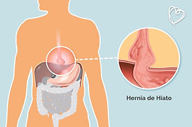 hernia-de-hiato.jpg