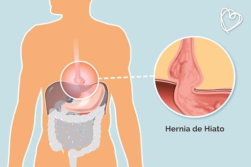 Hernia Hiatal, Doctor Luis Javier Cárdenas