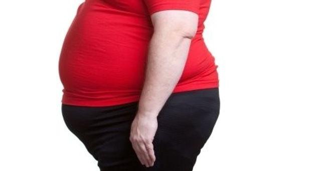 Cirugía Bariátrica vs. Liposucción