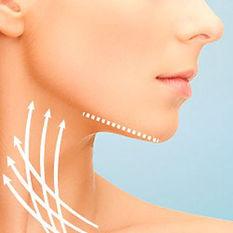 Lift de Cuello por el Doctor Luis Carlos Moreno, Cirugía Plástica