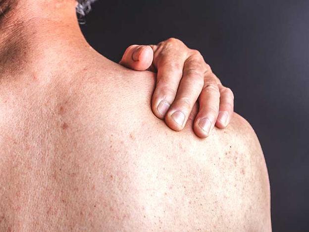Psoriasis por el Doctor Pablo Noel Medicina Interna - Dermatología - Manejo de las Enfermedades Crónicas de la Piel