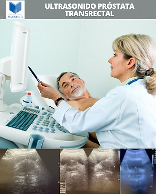 Ultrasonido de Próstata Transrectal, Campaña Prevención, Complejo Médico Marbella