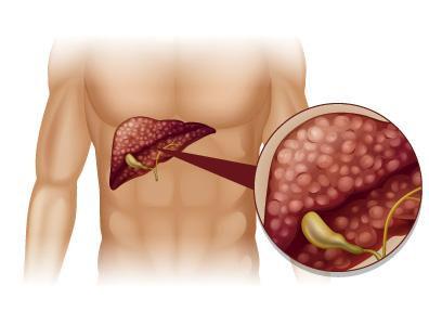 La cirrosis es una etapa tardía de la formación de cicatrices (fibrosis) en el hígado causada por ...