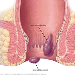 Las Hemorroides, MSN Doctor