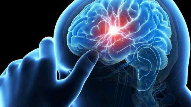 Epilepsia, por el Doctor Eddy Monge, MSN Salud Noticias