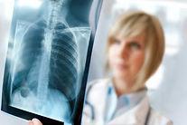 La Importancia de la Radiografía de Tórax, Complejo Médico Marbella