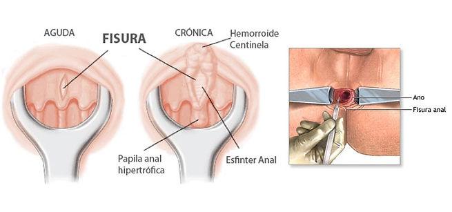 Una fisura anal es un pequeño desgarro en el tejido delgado y húmedo (mucosa) que recubre el ano