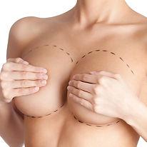 Cirugía Estética de la Mama por el Doctor Luis C. Moreno