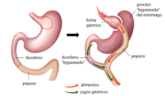 bypass_gastrico 1.png