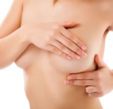 Reducción Mamaria Compartir  La cirugía de reducción de senos puede tener diferentes tipos de técnicas