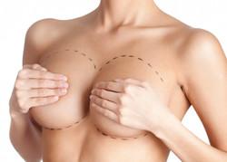 Mamoplastia Doctor Urriola