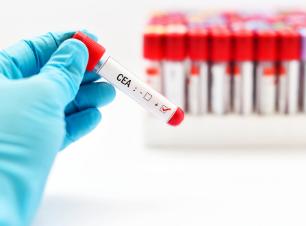 Marcador CEA (antígeno carcino embrionario), Campaña Prevención, Complejo Médico Marbella