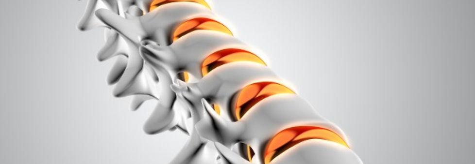 12 cabezal neurocirugia.jpg