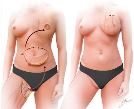 Doctor Luis Carlos Moreno, Reconstrucción Mamaria Post Mastectomía