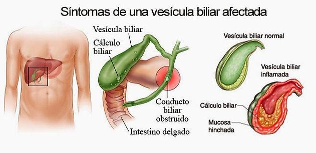 La vesícula biliar es un órgano con forma de pera ubicada bajo el hígado.