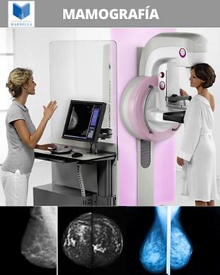 Mamografía con o sin Implantes, Campaña Prevención, Complejo Médico Marbella