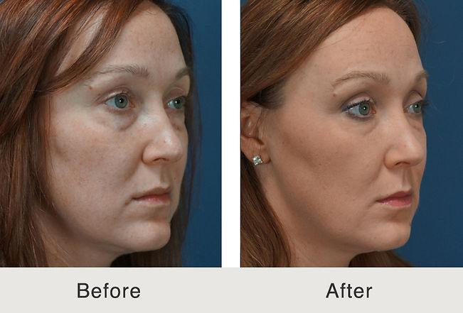 Carolina-Full-Liquid-Facial-Filler-Treat