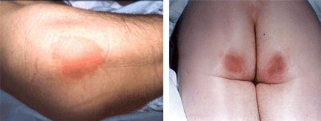 Reconstrcción de Ulceras, por el Doctor Luis C. Moreno