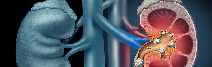 ¿Cuándo ir al Urólogo?, Cálculos Urinarios, Doctor Rodriguez Lay, Google Salud News
